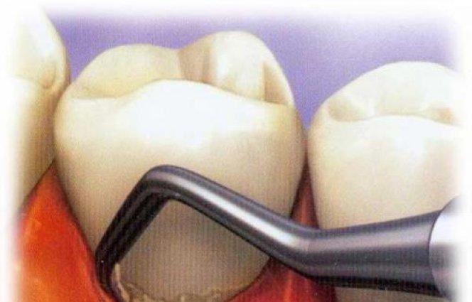 Отбеливание зубов полосками саратов
