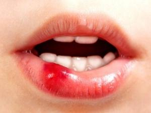 стоматит герпетический на губе