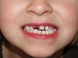 стоматит после прорезывания зубов