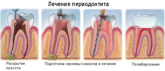 периодонтит лечение