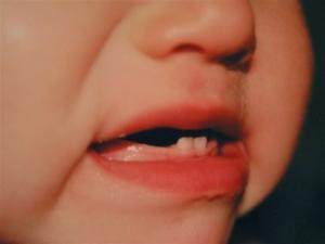 режутся зубки