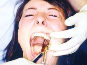 дергать зуб
