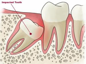 зуб мудрости давит на челюсть