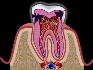 нерв зуба