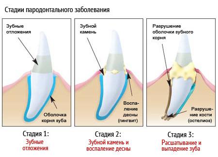 Инструкция К Препарату Камистад